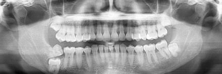 replace missing teeth image